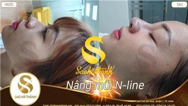 Nâng mũi không phẫu thuật - Nên hay không nên?