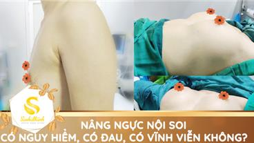 Nâng ngực nội soi có nguy hiểm, có đau, có được vĩnh viễn không?